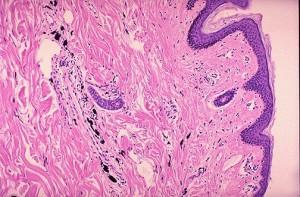 SKIN - Histology - H&E Paraffin